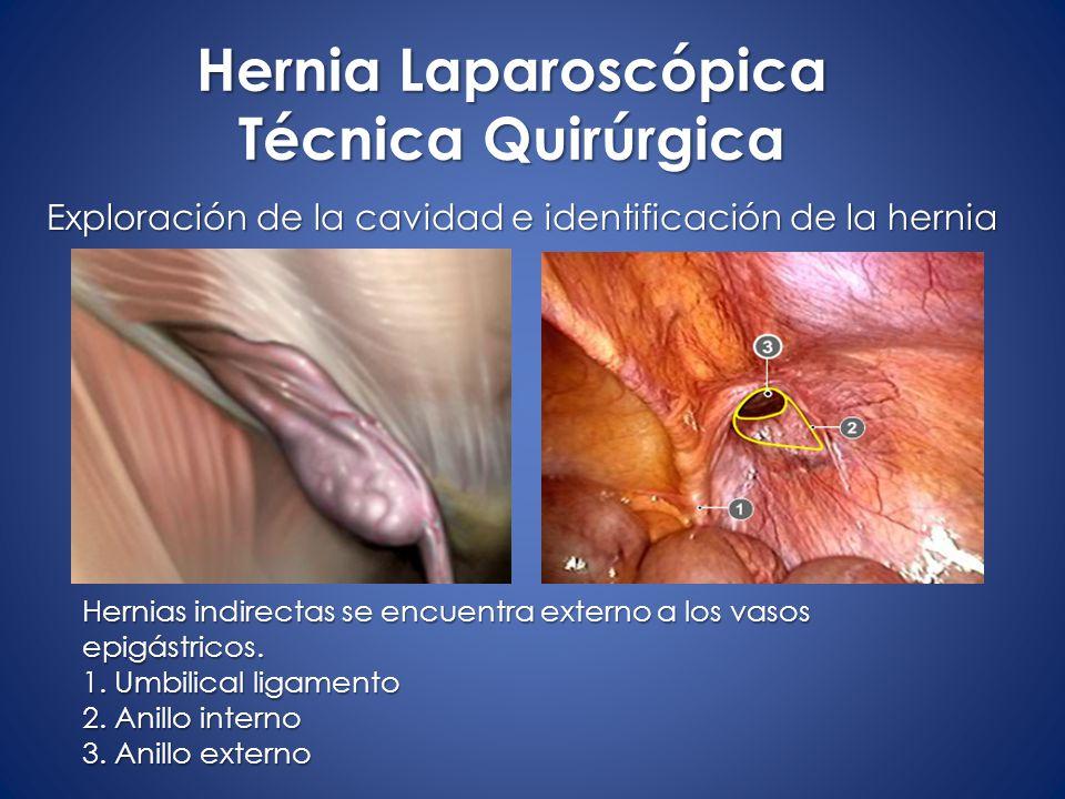 Encantador Anatomía Laparoscópica De Hernia Regalo - Anatomía de Las ...