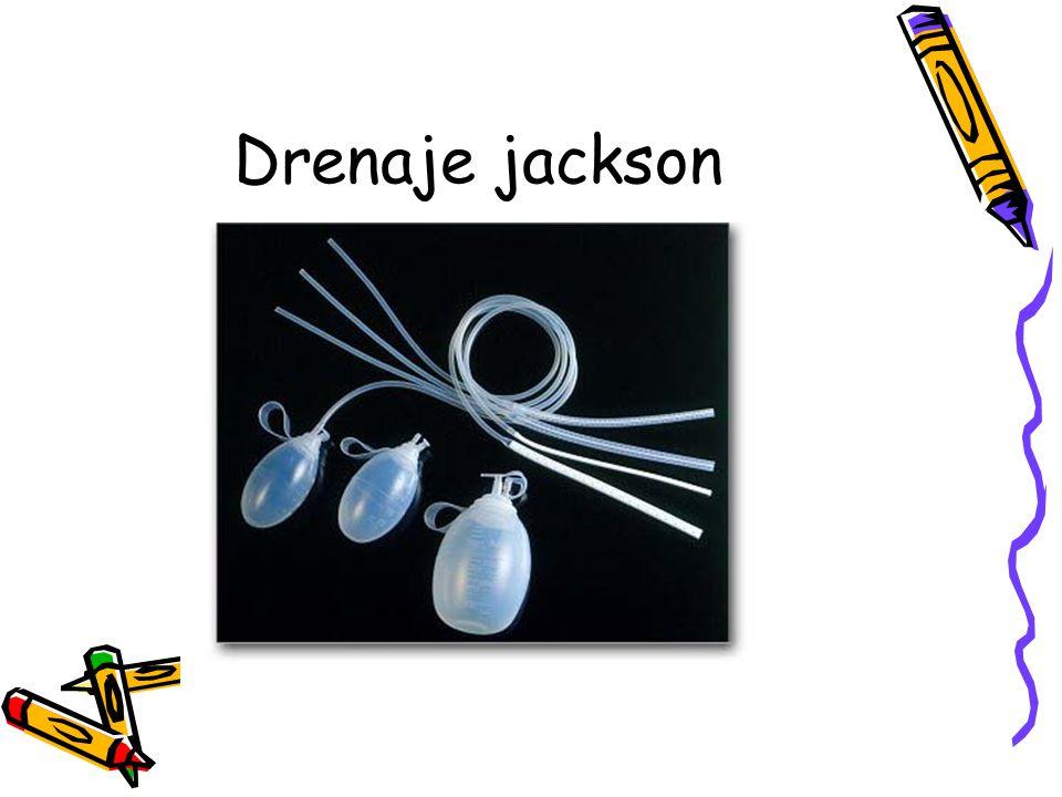 Drenaje jackson