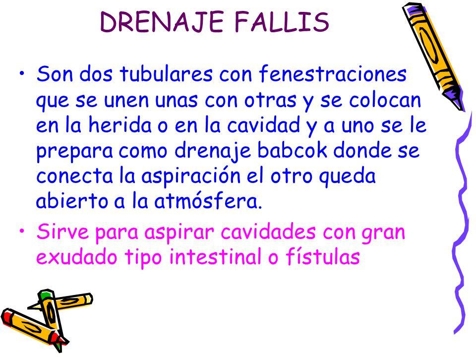 DRENAJE FALLIS