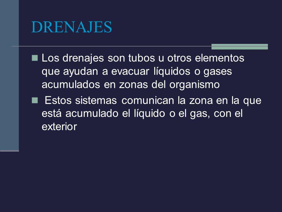 DRENAJES Los drenajes son tubos u otros elementos que ayudan a evacuar líquidos o gases acumulados en zonas del organismo.