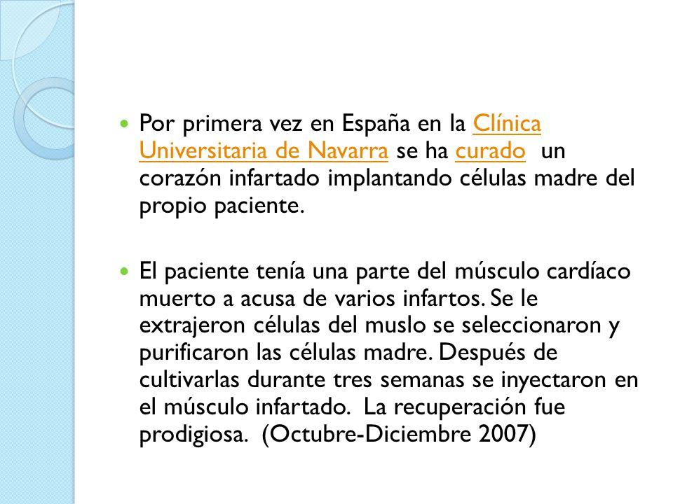 Por primera vez en España en la Clínica Universitaria de Navarra se ha curado un corazón infartado implantando células madre del propio paciente.
