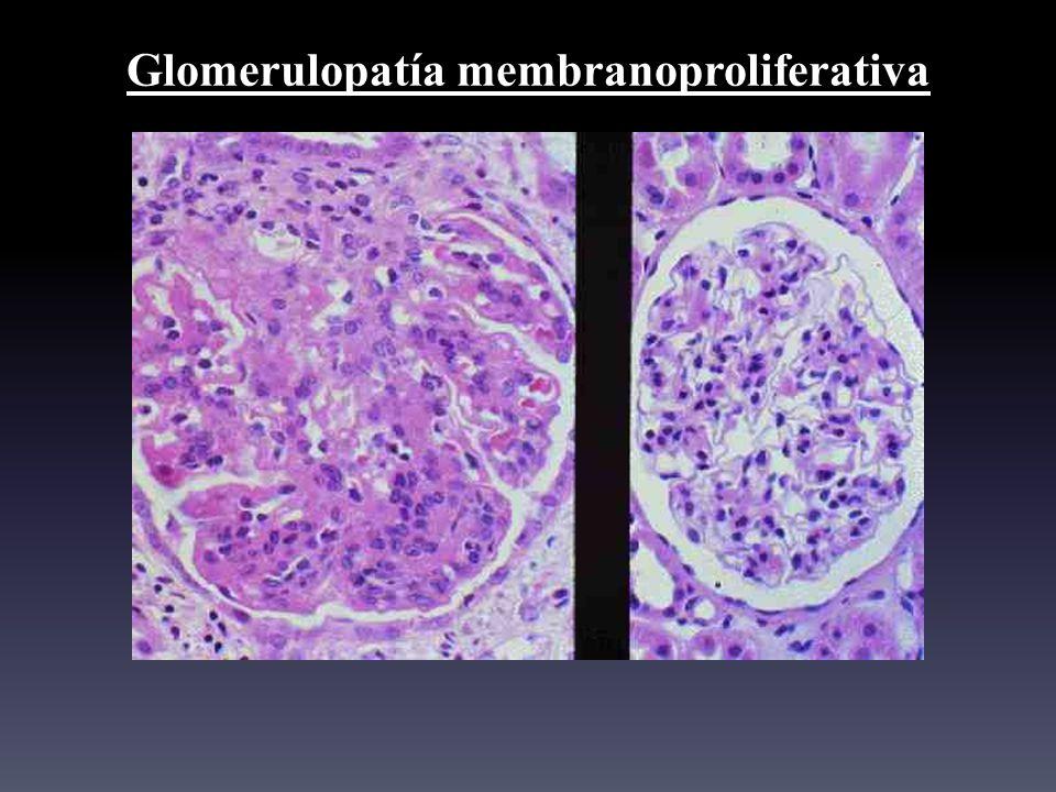 Glomerulopatía membranoproliferativa