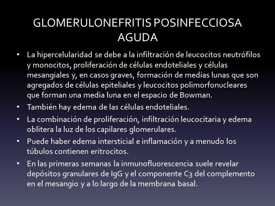 GLOMERULONEFRITIS POSINFECCIOSA AGUDA