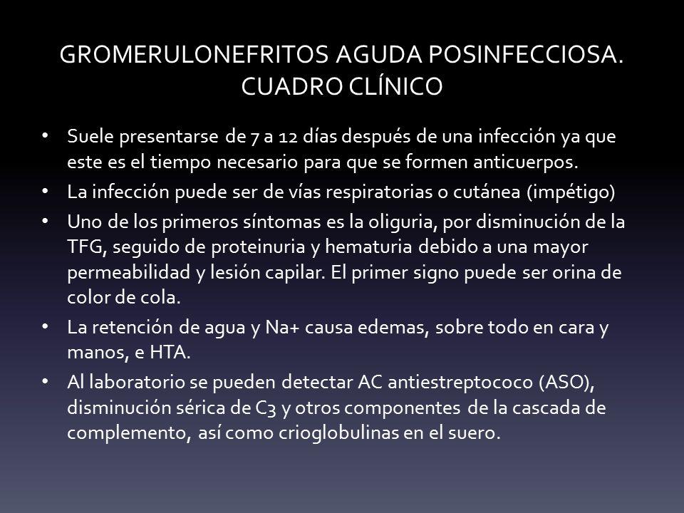GROMERULONEFRITOS AGUDA POSINFECCIOSA. CUADRO CLÍNICO