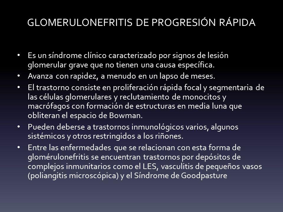 GLOMERULONEFRITIS DE PROGRESIÓN RÁPIDA