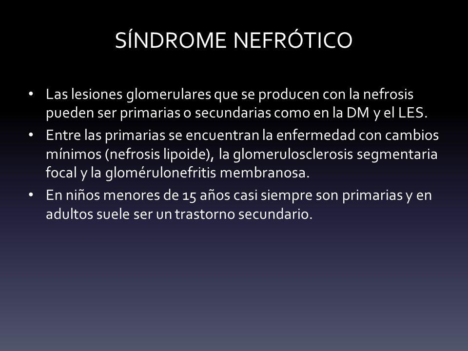 SÍNDROME NEFRÓTICO Las lesiones glomerulares que se producen con la nefrosis pueden ser primarias o secundarias como en la DM y el LES.