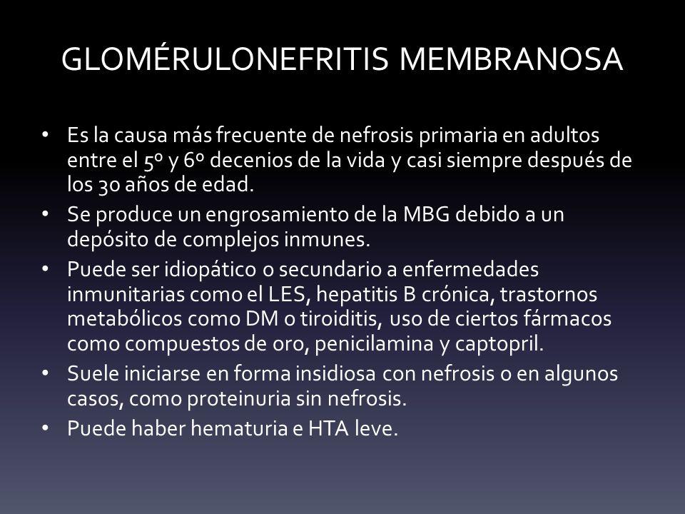 GLOMÉRULONEFRITIS MEMBRANOSA
