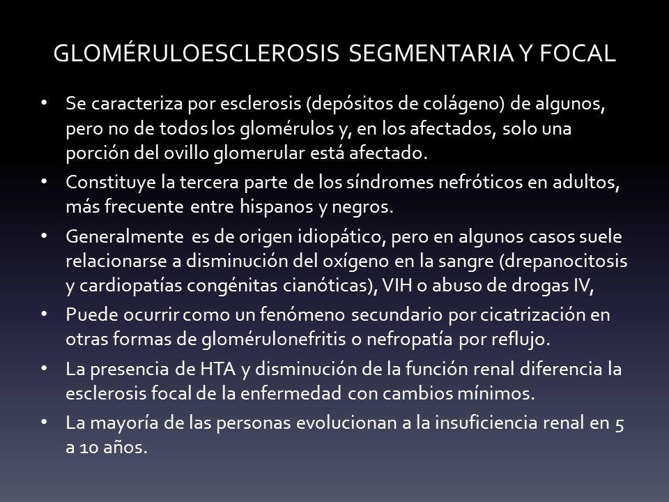 GLOMÉRULOESCLEROSIS SEGMENTARIA Y FOCAL