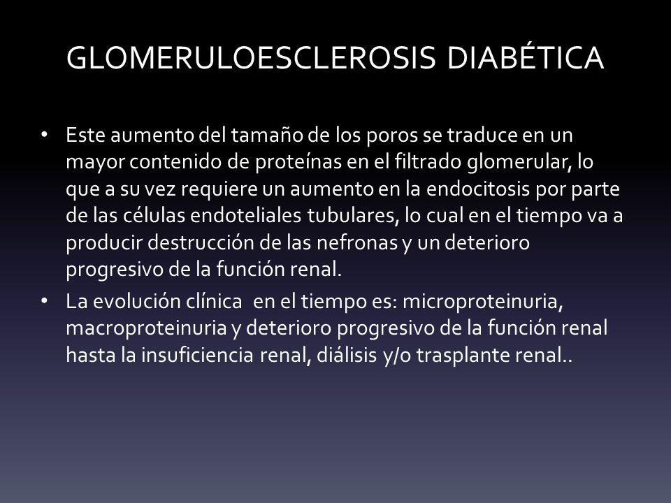 GLOMERULOESCLEROSIS DIABÉTICA