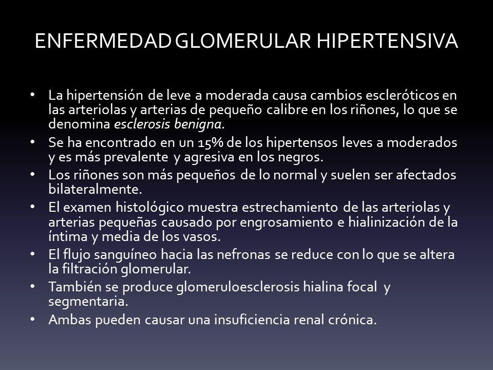 ENFERMEDAD GLOMERULAR HIPERTENSIVA