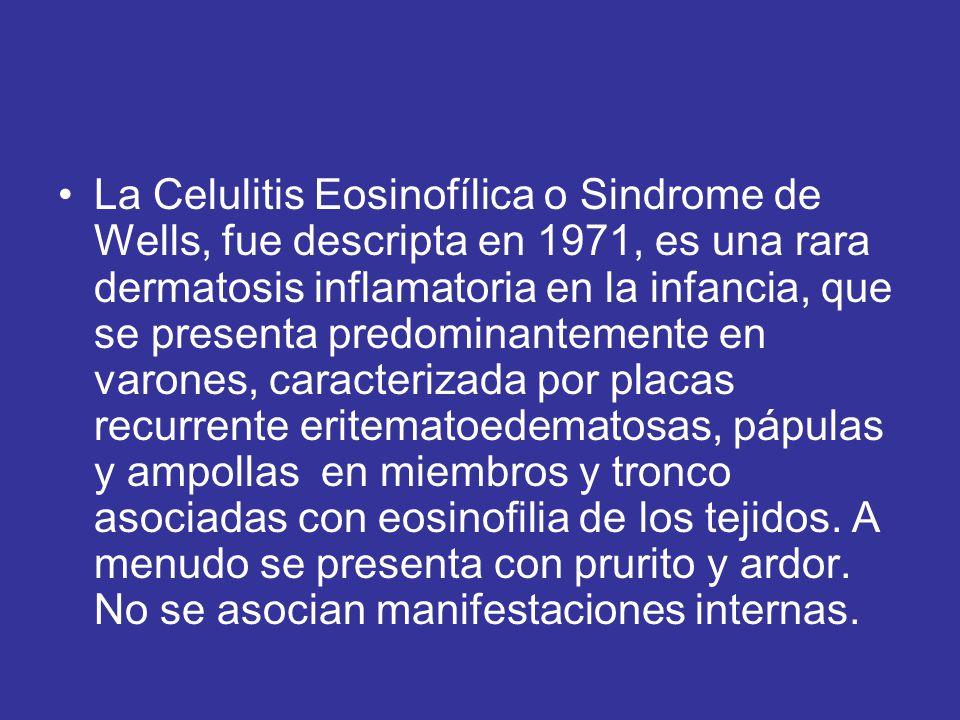 La Celulitis Eosinofílica o Sindrome de Wells, fue descripta en 1971, es una rara dermatosis inflamatoria en la infancia, que se presenta predominantemente en varones, caracterizada por placas recurrente eritematoedematosas, pápulas y ampollas en miembros y tronco asociadas con eosinofilia de los tejidos.