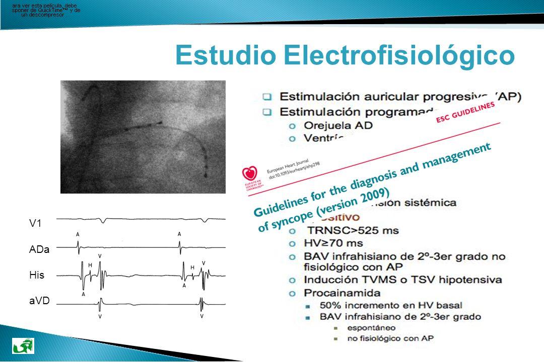 Estudio Electrofisiológico