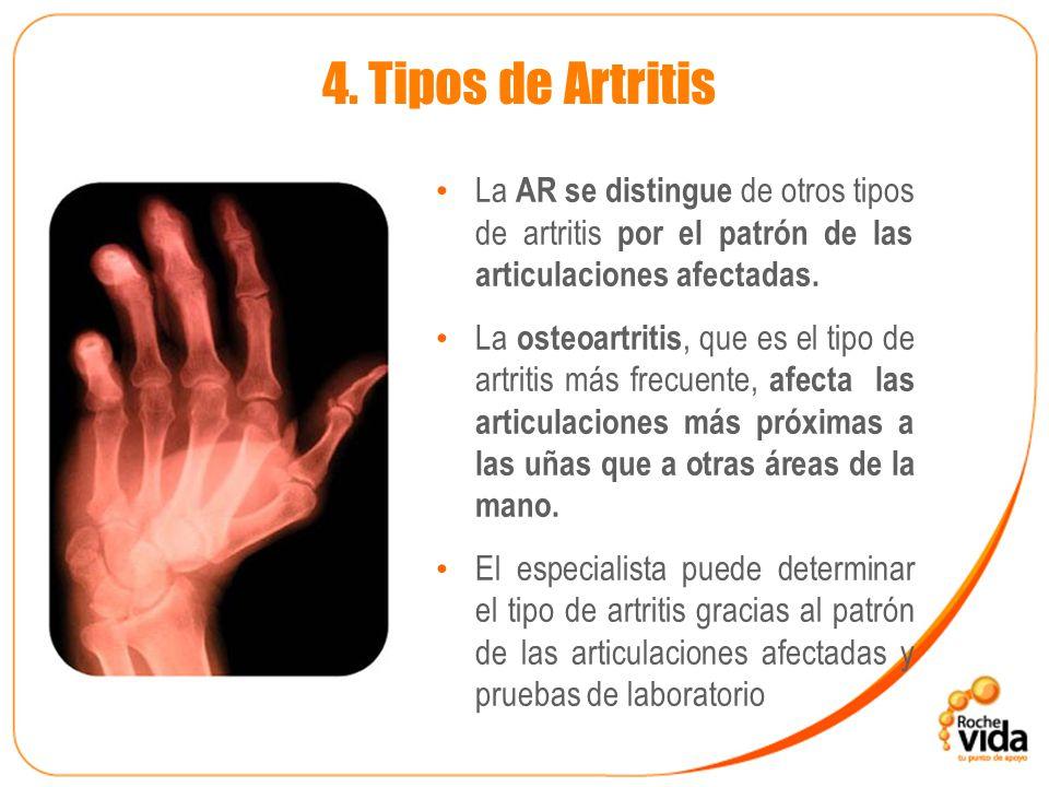 4. Tipos de Artritis La AR se distingue de otros tipos de artritis por el patrón de las articulaciones afectadas.