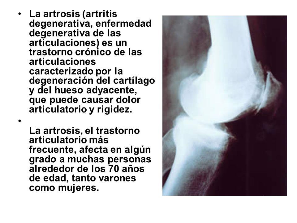 La artrosis (artritis degenerativa, enfermedad degenerativa de las articulaciones) es un trastorno crónico de las articulaciones caracterizado por la degeneración del cartílago y del hueso adyacente, que puede causar dolor articulatorio y rigidez.