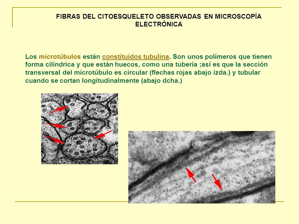 FIBRAS DEL CITOESQUELETO OBSERVADAS EN MICROSCOPÍA ELECTRÓNICA