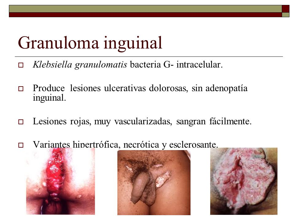 Granuloma inguinal Klebsiella granulomatis bacteria G- intracelular.