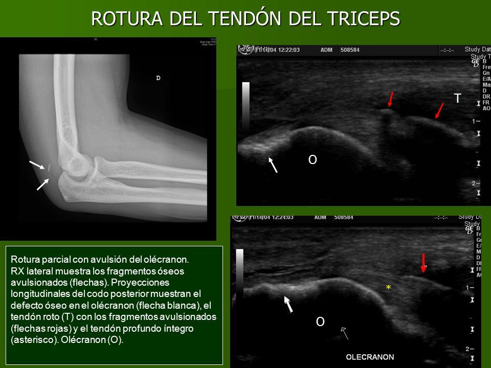 Lujoso Distal Del Bíceps Anatomía Tendón Patrón - Imágenes de ...