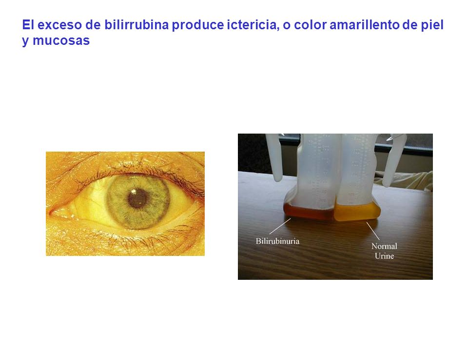 El exceso de bilirrubina produce ictericia, o color amarillento de piel y mucosas