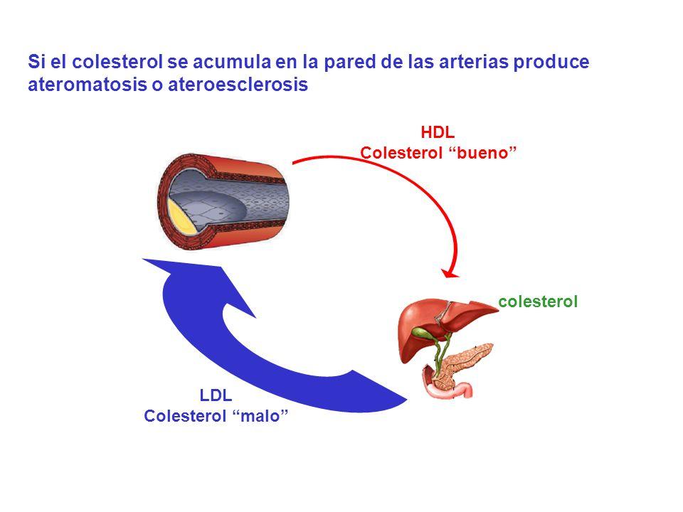 Si el colesterol se acumula en la pared de las arterias produce ateromatosis o ateroesclerosis