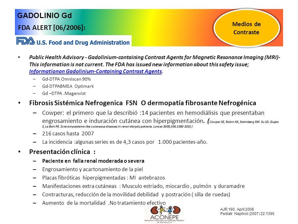 Fibrosis Sistémica Nefrogenica FSN O dermopatía fibrosante Nefrogénica