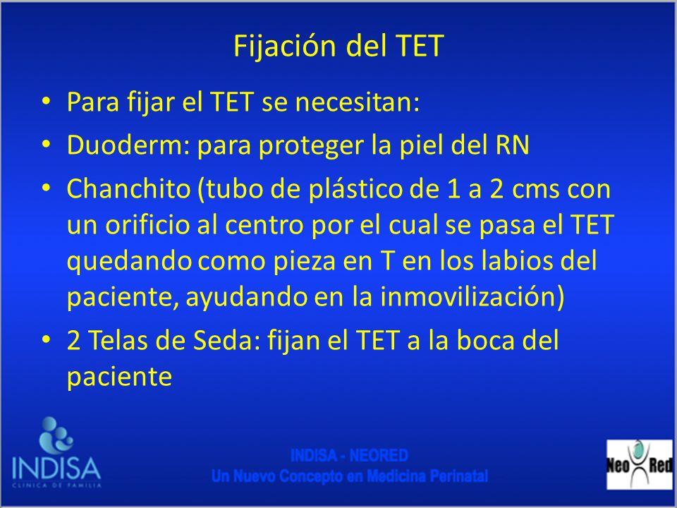 Fijación del TET Para fijar el TET se necesitan: