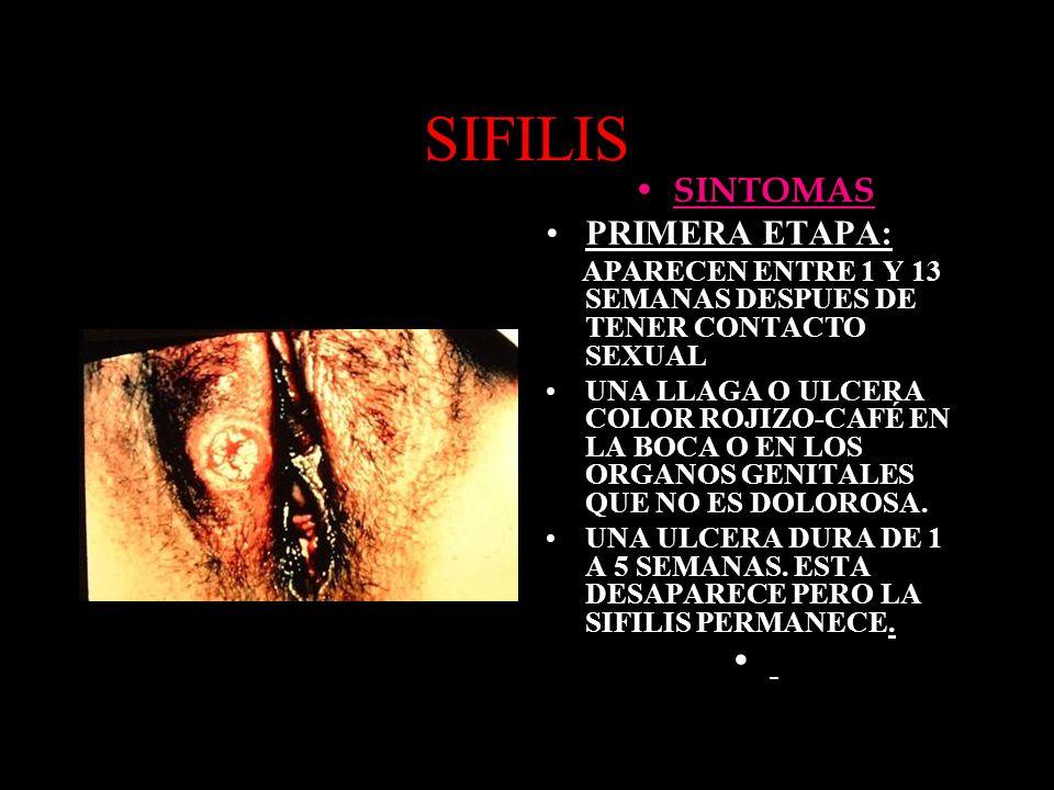 SIFILIS SINTOMAS PRIMERA ETAPA: