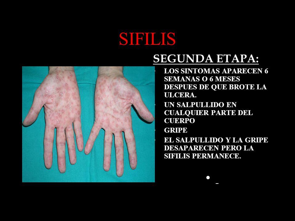 SIFILIS SEGUNDA ETAPA: