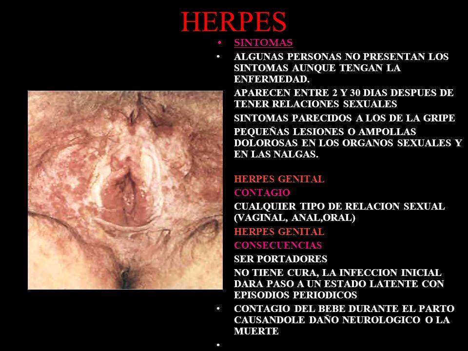 HERPES SINTOMAS. ALGUNAS PERSONAS NO PRESENTAN LOS SINTOMAS AUNQUE TENGAN LA ENFERMEDAD.