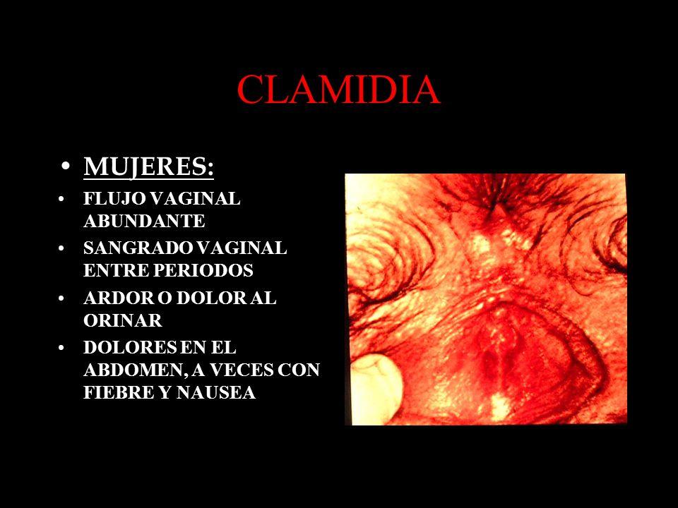 CLAMIDIA MUJERES: FLUJO VAGINAL ABUNDANTE