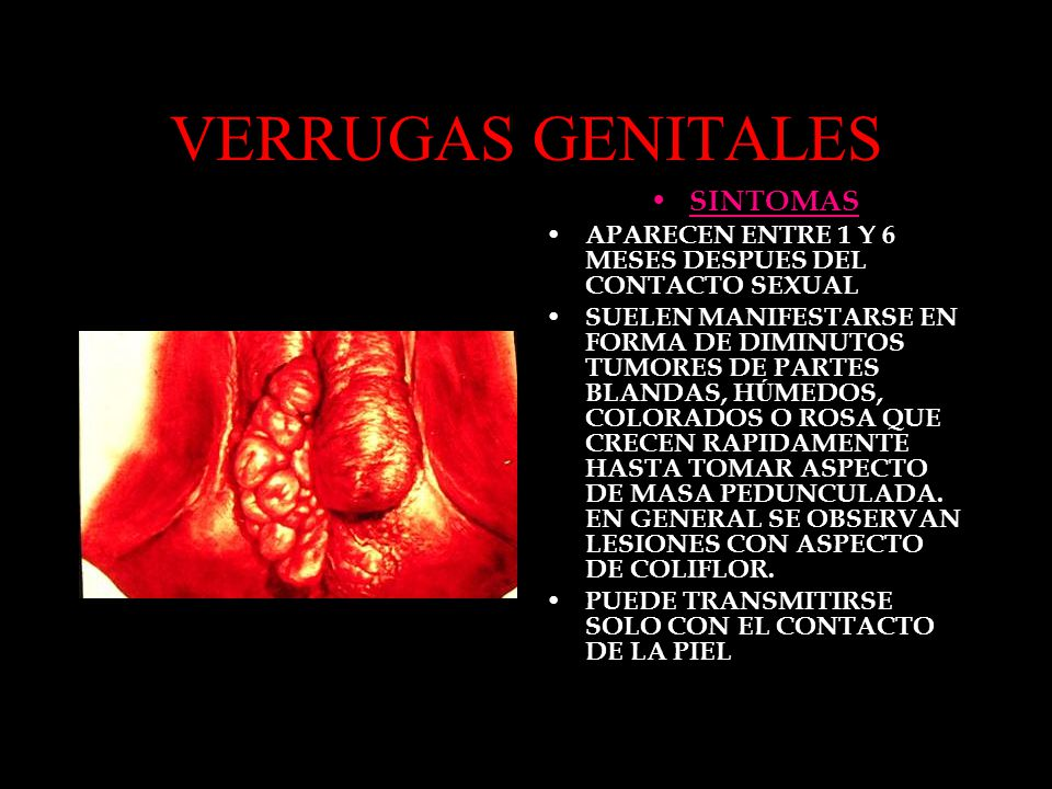 VERRUGAS GENITALES SINTOMAS