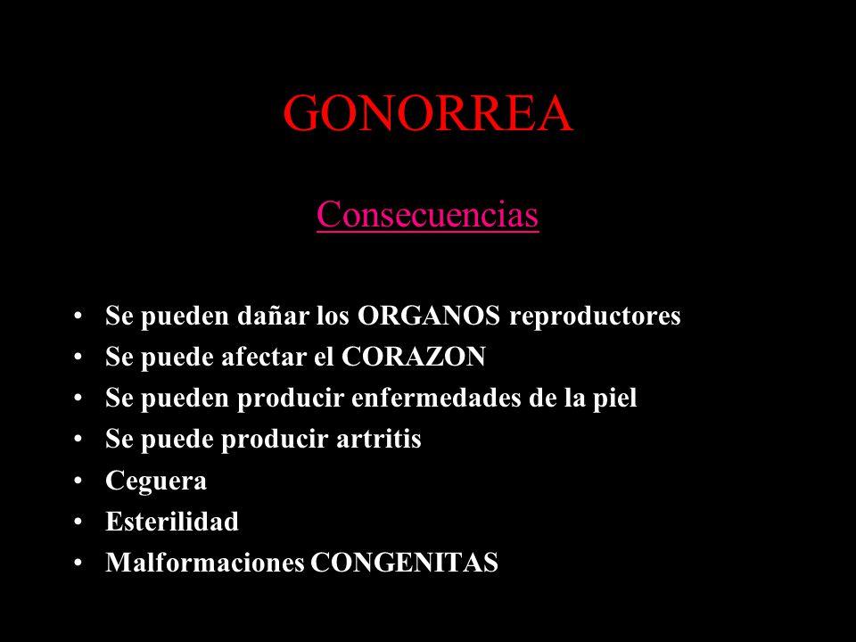 GONORREA Consecuencias Se pueden dañar los ORGANOS reproductores