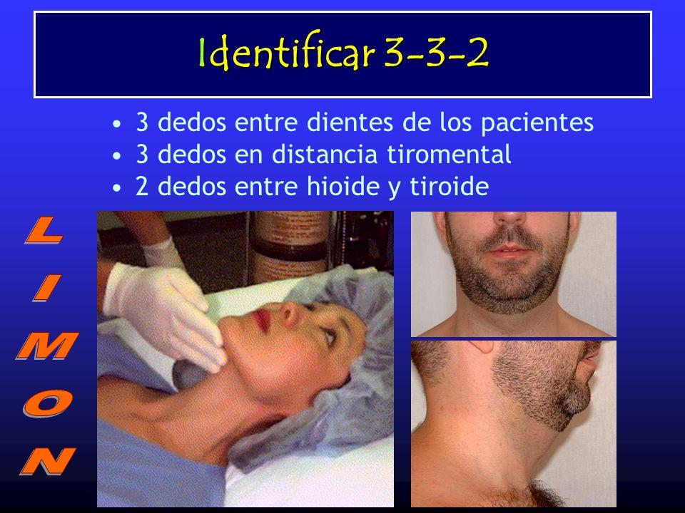 Identificar 3-3-2 LIMON 3 dedos entre dientes de los pacientes