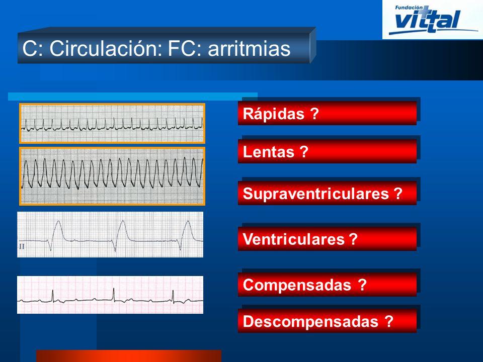 C: Circulación: FC: arritmias