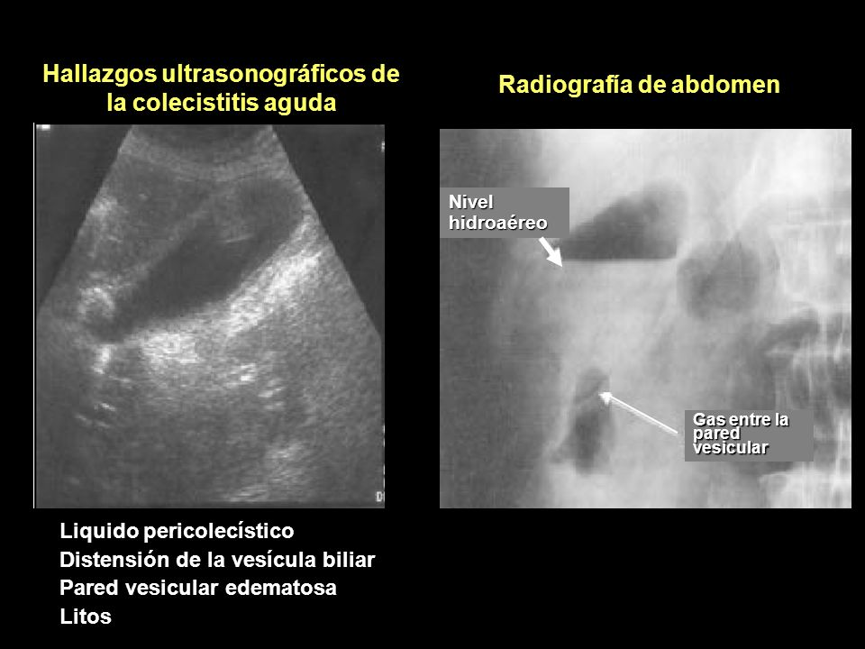 Hallazgos ultrasonográficos de la colecistitis aguda