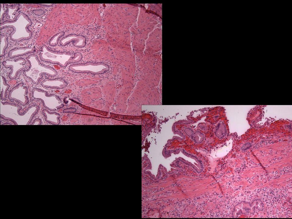 Los cambios histológicos que con mayor frecuencia se pueden observan en estos casos son fibrosis leve de la pared vesicular con mucosa sin alteraciones y en algunos pacientes con múltiples episodios recidivantes de cólico biliar puede haber una vesícula escleroatrófica y divertículos intramurales conocidos como senos de Rokitansky-Aschoff.