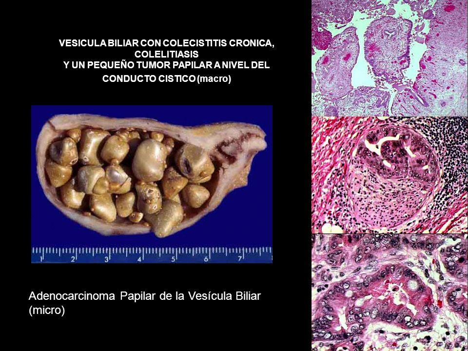 Adenocarcinoma Papilar de la Vesícula Biliar (micro)