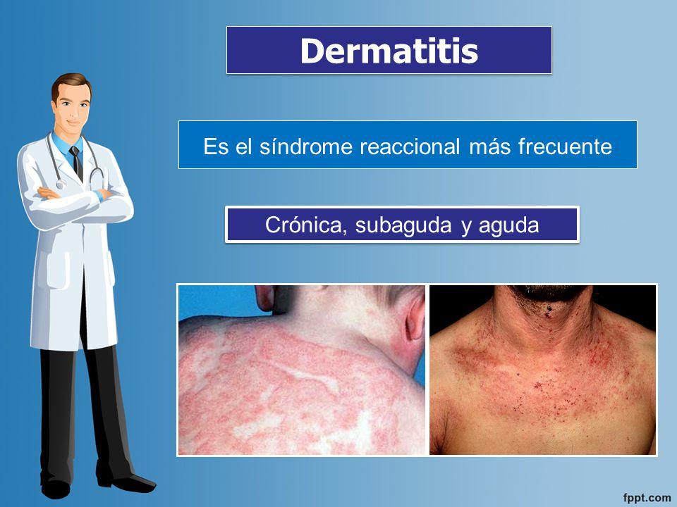 Dermatitis Es el síndrome reaccional más frecuente