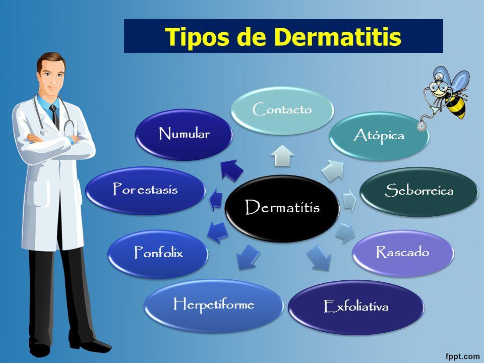 Tipos de Dermatitis Dermatitis Contacto Atópica Seborreica Rascado