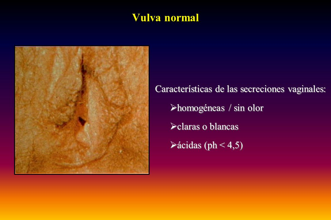 Vulva normal Características de las secreciones vaginales: