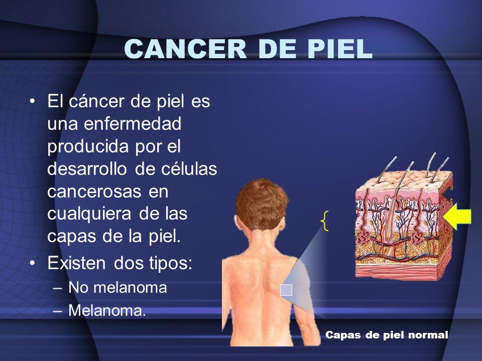 CANCER DE PIEL El cáncer de piel es una enfermedad producida por el desarrollo de células cancerosas en cualquiera de las capas de la piel.