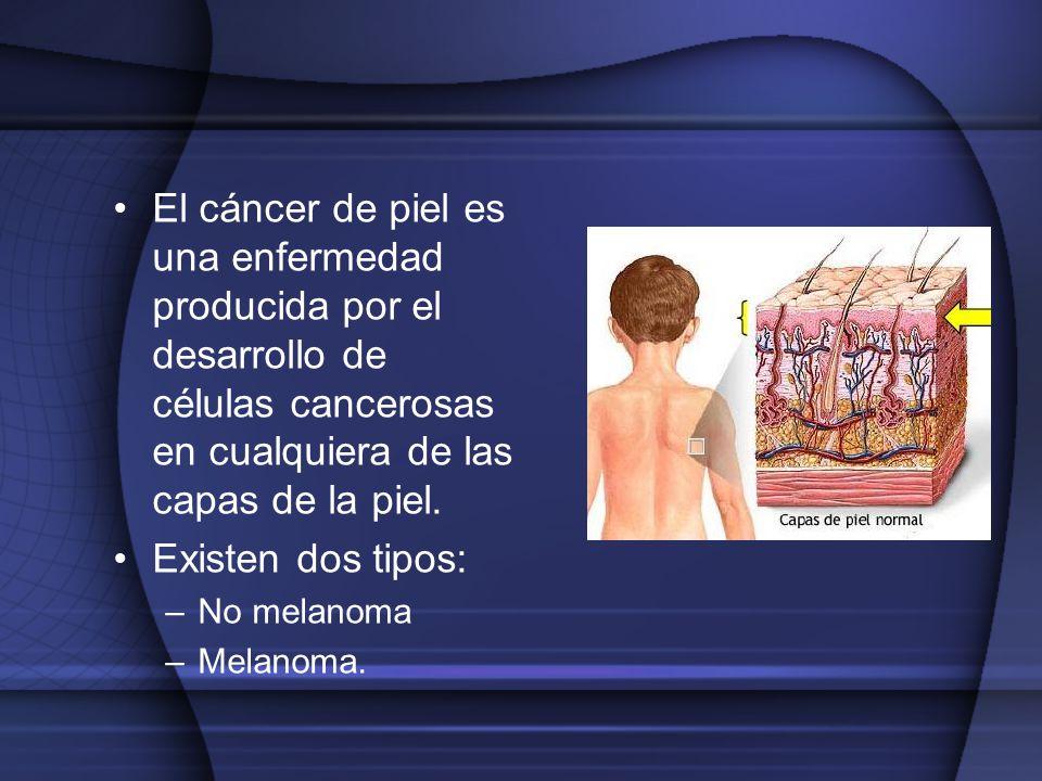 El cáncer de piel es una enfermedad producida por el desarrollo de células cancerosas en cualquiera de las capas de la piel.