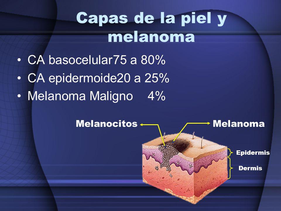 Capas de la piel y melanoma