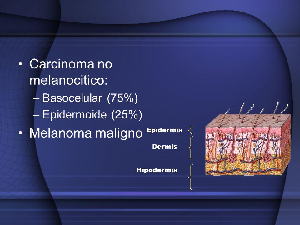 Carcinoma no melanocitico: