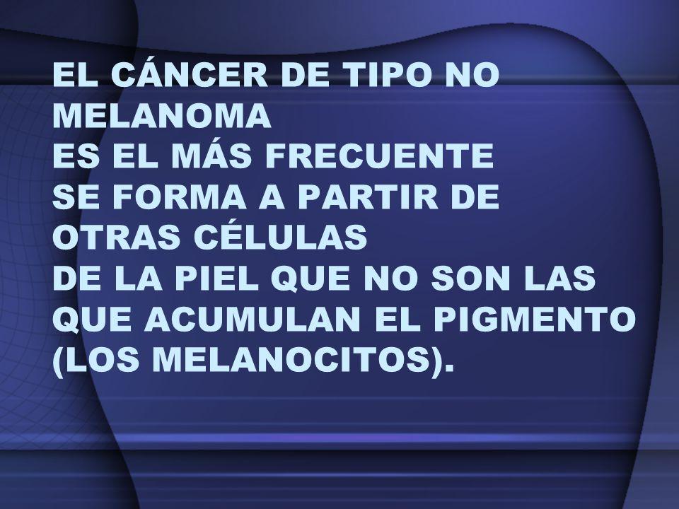 El cáncer de tipo no melanoma es el más frecuente se forma a partir de otras células de la piel que no son las que acumulan el pigmento (los melanocitos).
