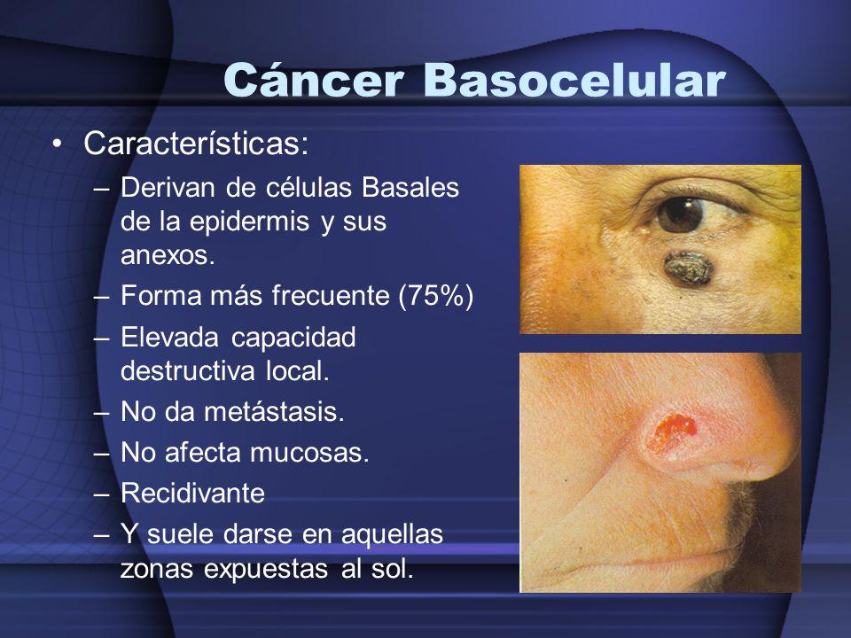 Cáncer Basocelular Características: