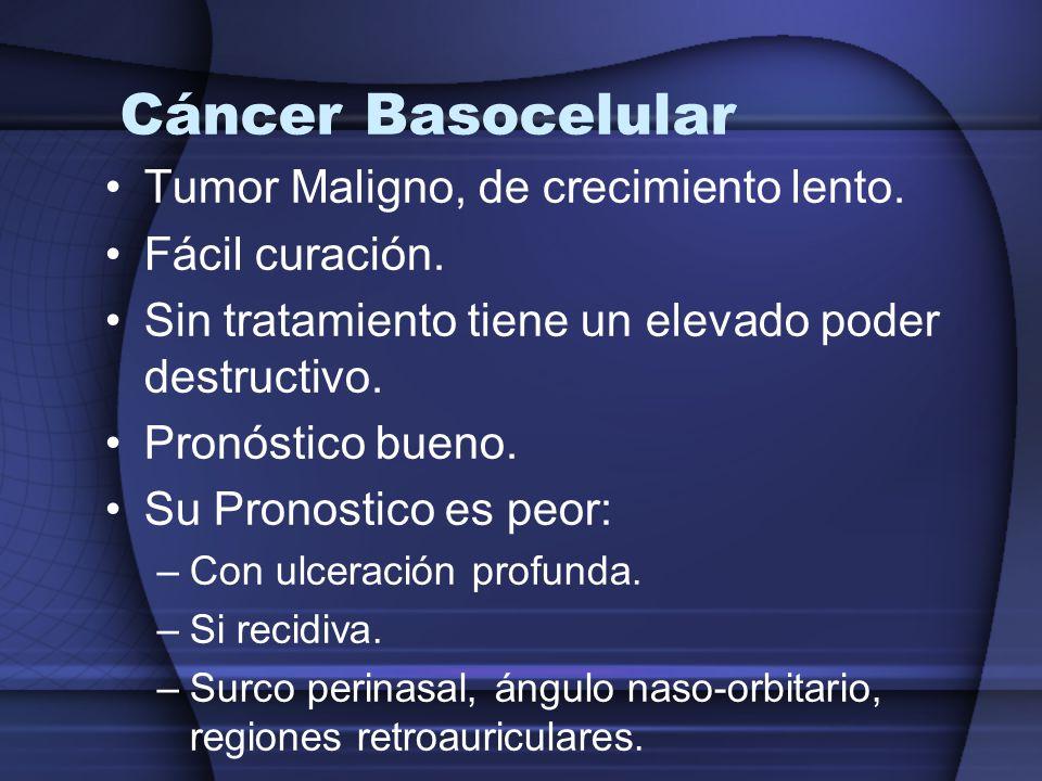 Cáncer Basocelular Tumor Maligno, de crecimiento lento.