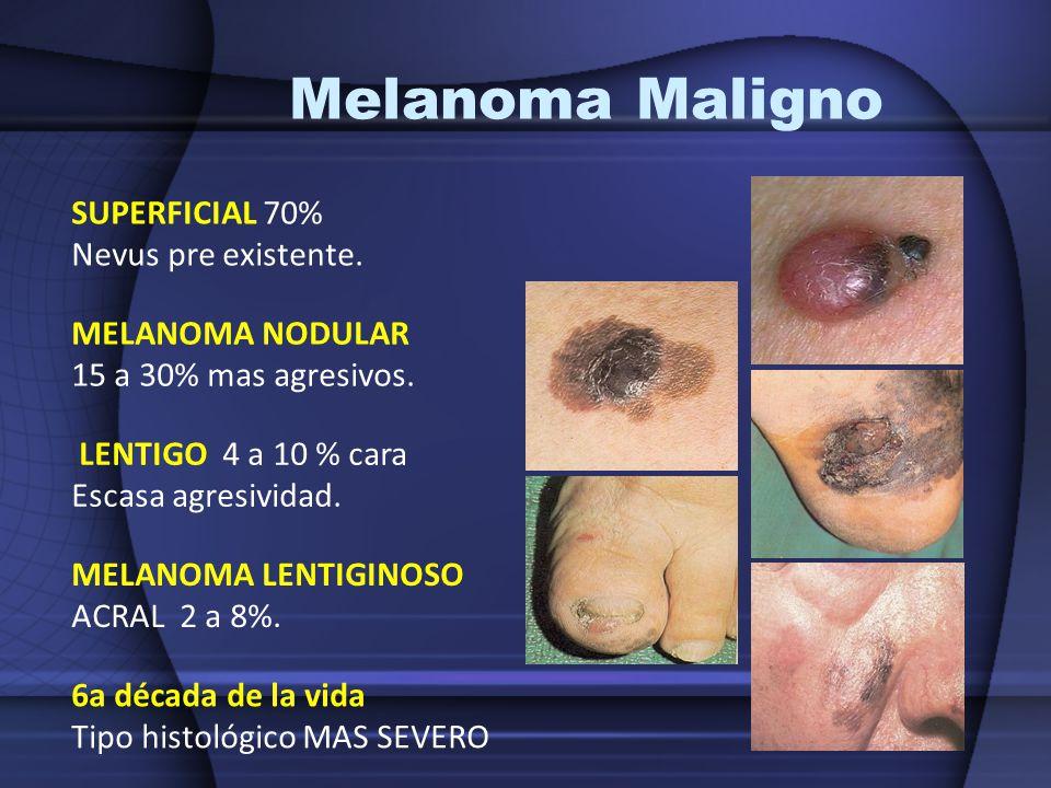 Melanoma Maligno SUPERFICIAL 70% Nevus pre existente. MELANOMA NODULAR