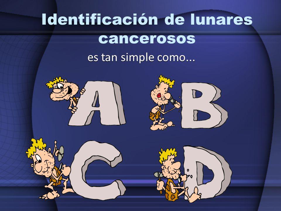 Identificación de lunares cancerosos