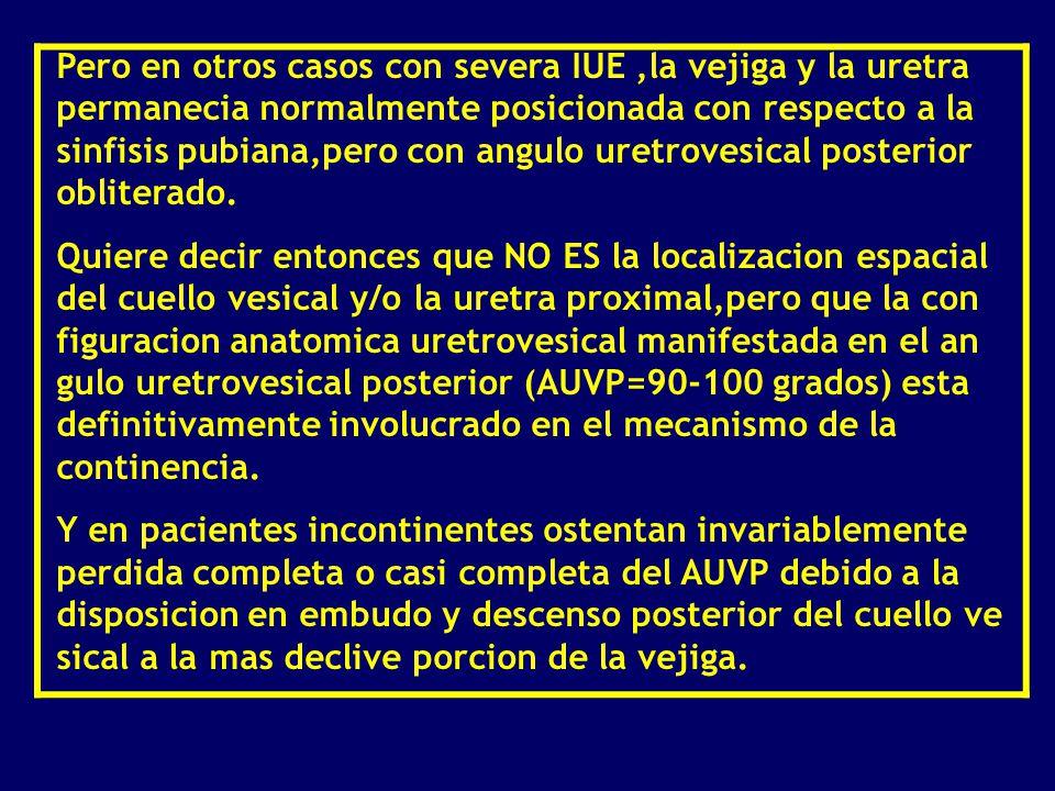 Moderno Lo Que Quiere Decir Hipocondríaco En La Anatomía Patrón ...