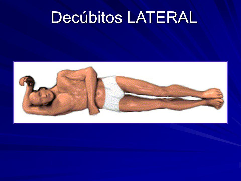 Decúbitos LATERAL
